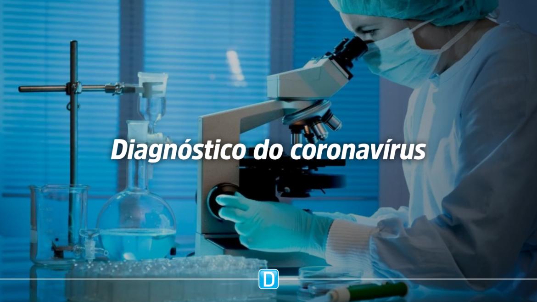 Resolução da Anvisa autoriza laboratórios agropecuários a fazer testes do coronavírus